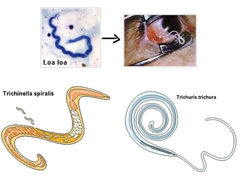 fertőzés trichinosis
