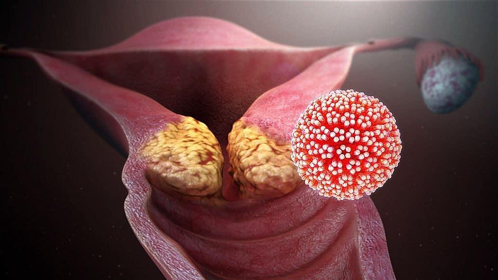 papilloma paraziták a testkezelésben