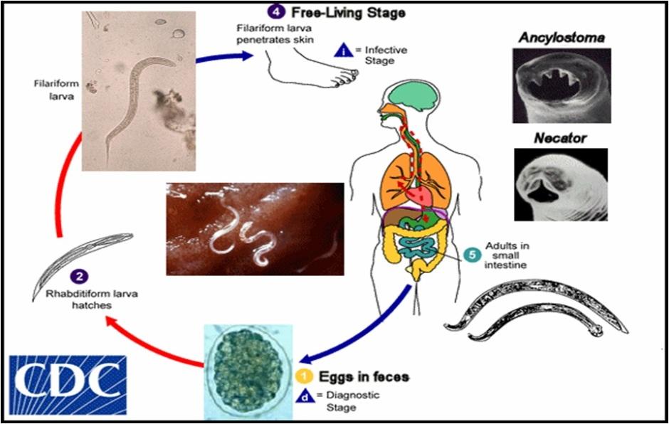 ankilostomiasis anaemia