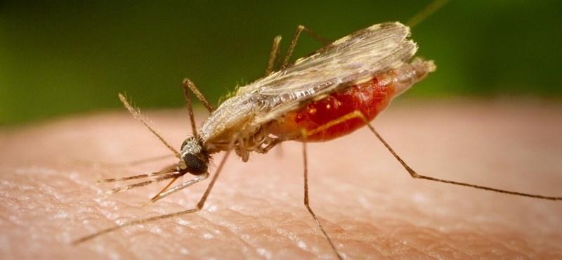 Parazita ikertestvérét hordozza mellkasán egy kisfiú - Aki a parazita hordozó