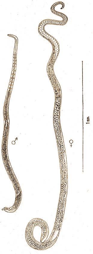 egyének orsóféreg
