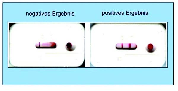 Az antitestek szerepe a helminthiasisban, Az antitestek szerepe a helminthiasisban