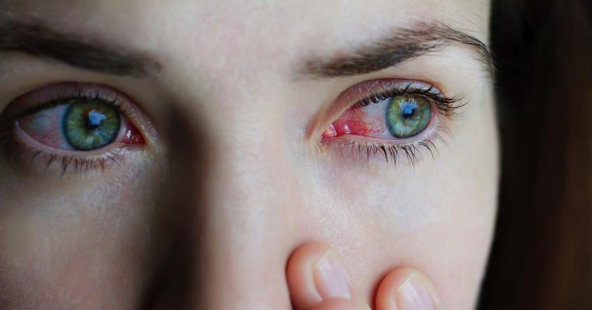 Szem parazita gyógyszerek, Parazita gyógyszer a szem számára