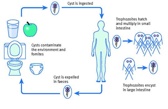 A máj lamblia tünetei A giardiasis súlyosbodása