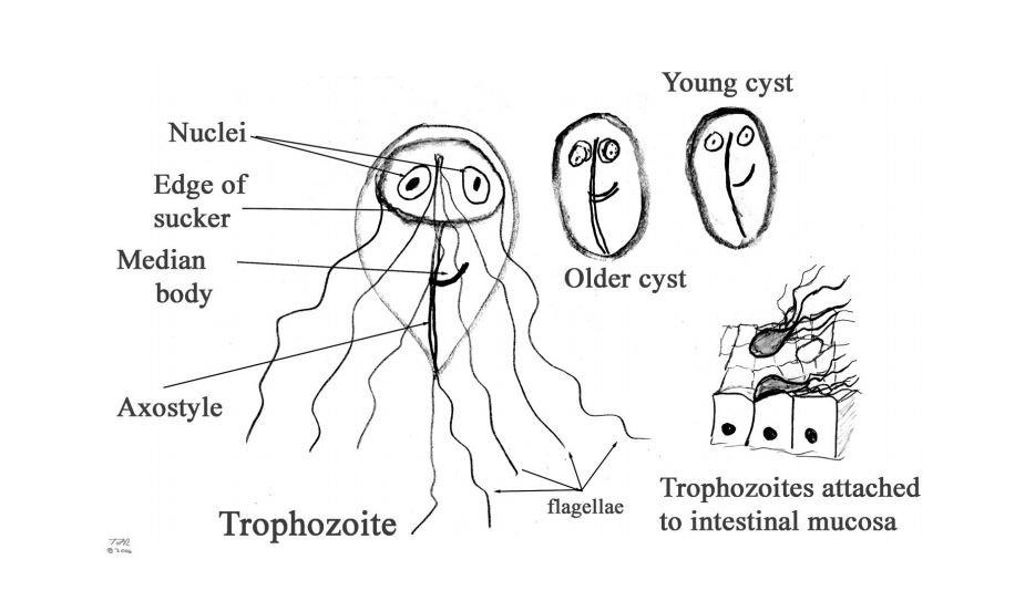 Diarrhea parasite giardia. Giardia diarrhea vomiting