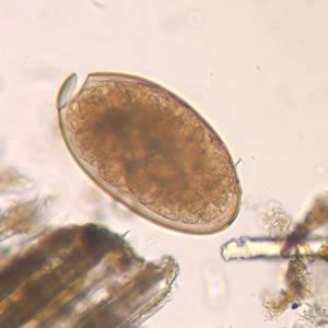 fascioliasis emberi fertőzés