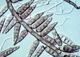 Helminthosporium conidia, Helminthosporium conidia