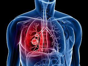 tüdőrák tünetei, kivizsgálása, tüdőrák szakértők, onkológiai rendelés, másod vélemény