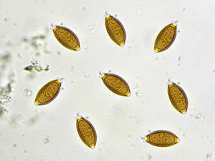 Pinwormot jelent