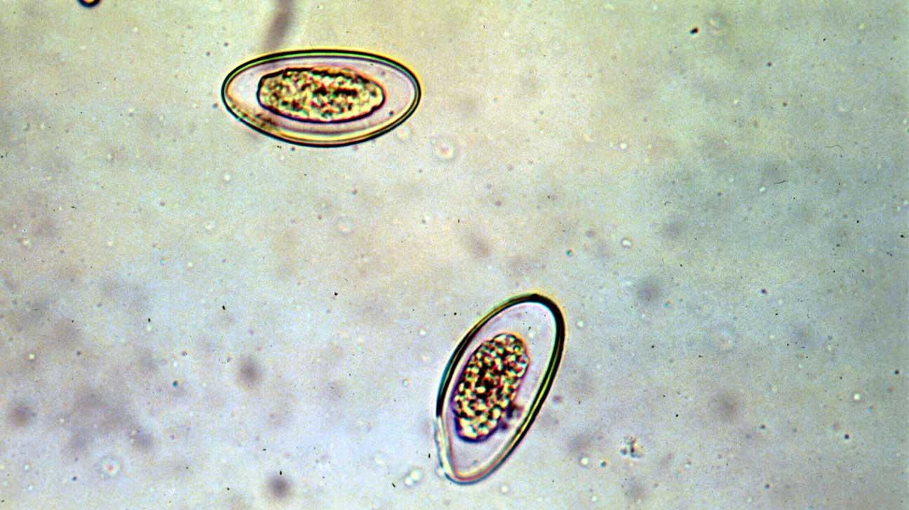 pinworms hányás