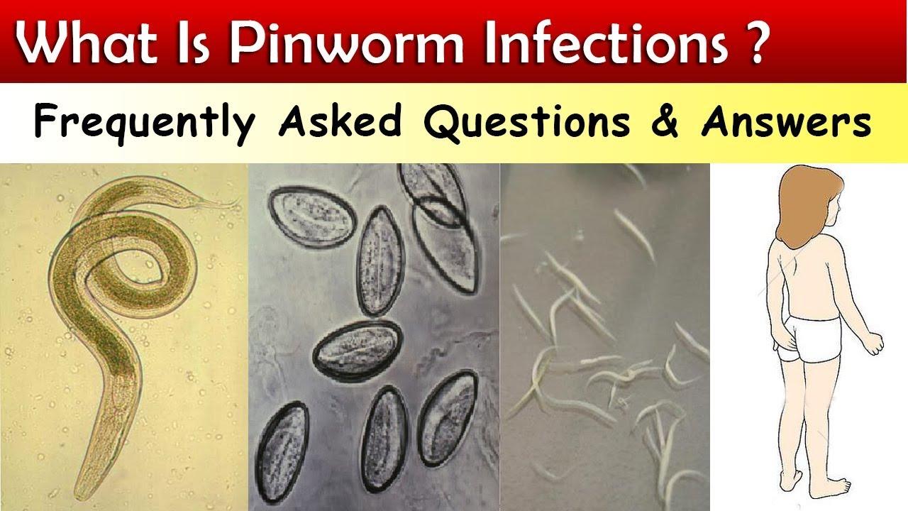 vannak e felnőttek pinworms ek enterobiosis egy szoptató anyánál