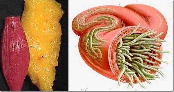 Paraziták és gyermekek kezelése Egyszerű paraziták