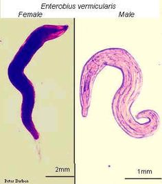 Enterobius vermicularis pinworm. Pinworms vagy enterobiasis tünetei