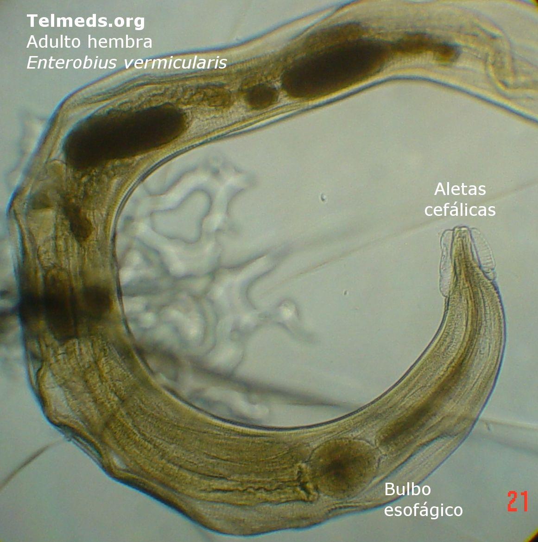 Enterobiasis következményei felnőtteknél, A szervezet állóképességét növelő gyógyszer