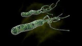 Helicobacter kártevők Az emberi test toxinjainak gyógyszerei