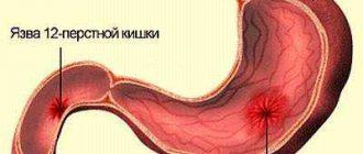 rossz leheletű epeúti diszkinézia