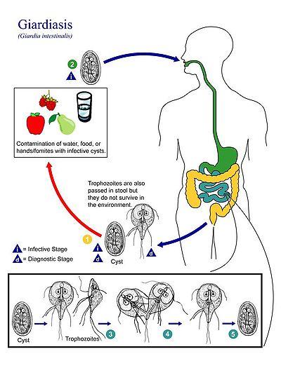 sintomas giardia en humanos