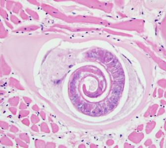 takarékos gyógymód a paraziták számára a legjobb gyógyszer férgek és lamblia kezelésére