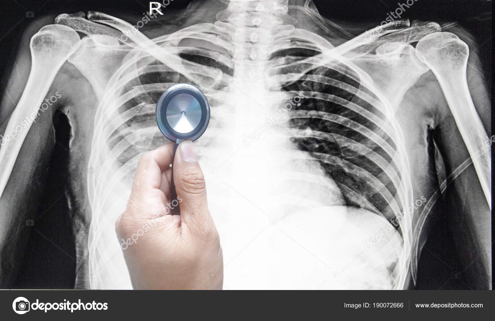 tüdő alveococcosis CT milyen jó gyógymód a férgekre