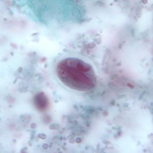 giardia cysts cytology