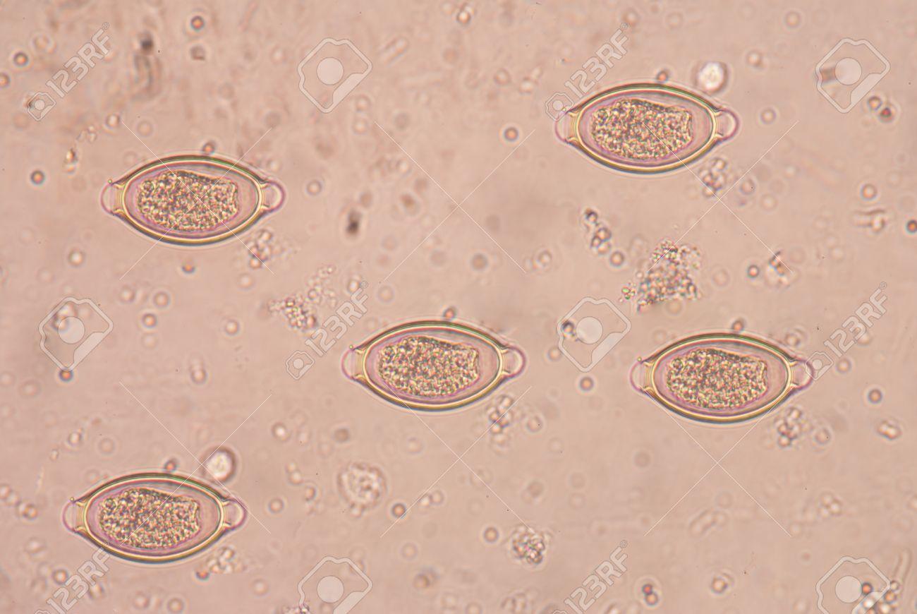 Az ankilostomiasis. Hogyan lehet eltávolítani a helminth cisztákat