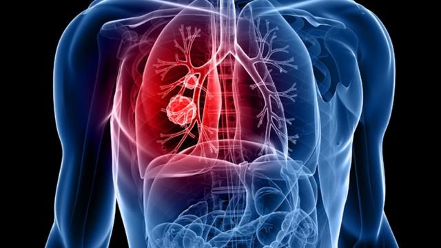 Tüdőparaziták képei. Ektoparaziták és endoparaziták képei