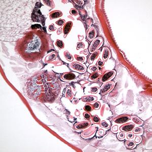 Vermox gyógyszer férgek számára férgek számára rossz lehelet a torkában