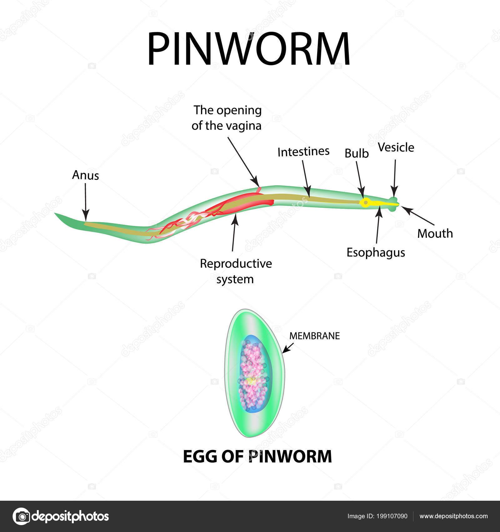 A pinworm az enterobiasis kórokozója